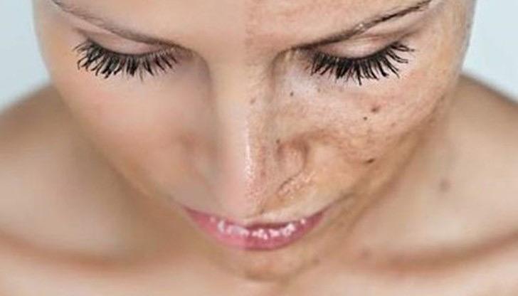 fotoringiovanimento viso luce pulsata